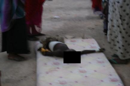 Young Baidoa casualty